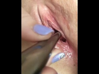 Peehole stretching, deep and thick