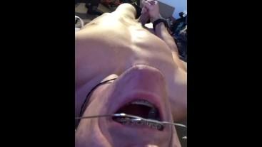 Wanna see my braces ?