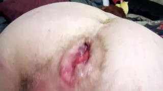 Fisting Hairy BBW Pussy With Anal Prolapse - Big Wet Pussy