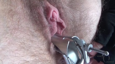 Speculum inserted in hairy pussy
