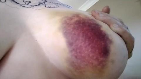 Injury porn