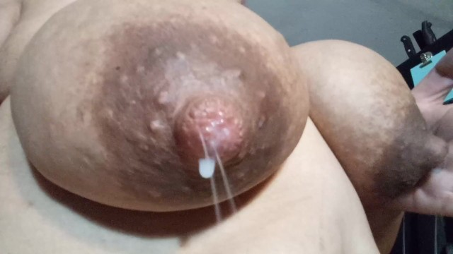 What to do for breast engorgement Engorged big tits solo stream breastmilk