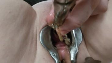 Female peehole sounding 4, 9mm sound