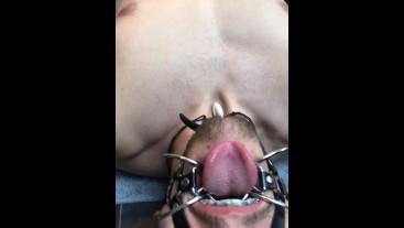 Braces Porn