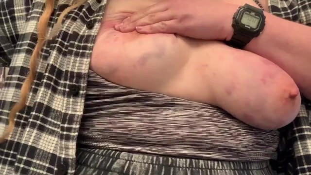 Breast biopsy punch Punching and shaking bruised painful tits titty self-abuse