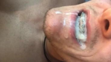 Huge load in my braces