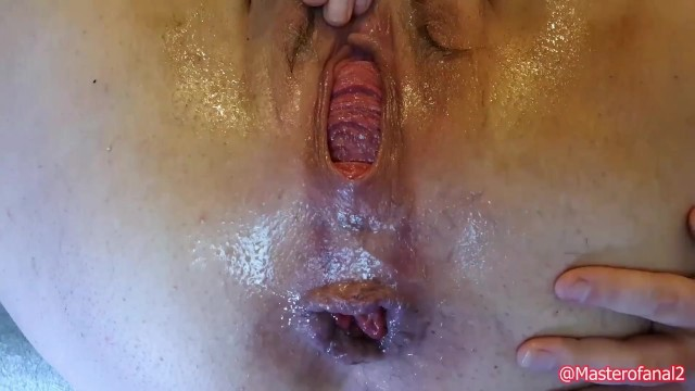 Extreme anal prolapse Preview - extreme anal and prolapse