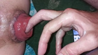 Anal Prolapse Fuck Porn Videos | Pornhub.com