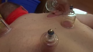 removing suction cups from slaves back