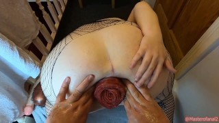Double anal fisting and huge prolapse for anal slut