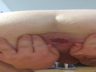 Shemale slut fingering her loose anal gape...