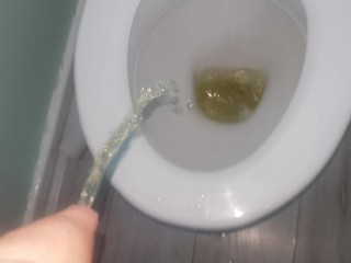 My bladder wont stop piss keeps coming out...